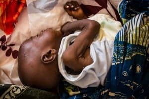 Malnourished baby in Niger.